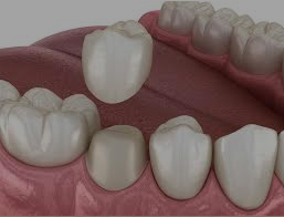 dental crowns clarence ny